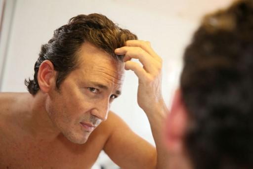Pilexin ayuda a la caída del cabello